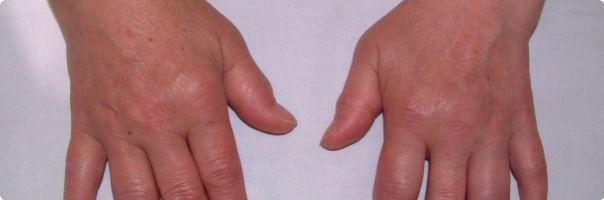 Polovina pacientů s revmatoidní artritidou si neuvědomuje, že poškození kloubů je nevratné