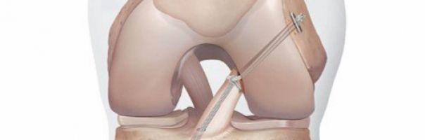 Nová metoda léčby kolena pomocí vnitřní ortézy zkrátí návrat ke sportu na polovinu