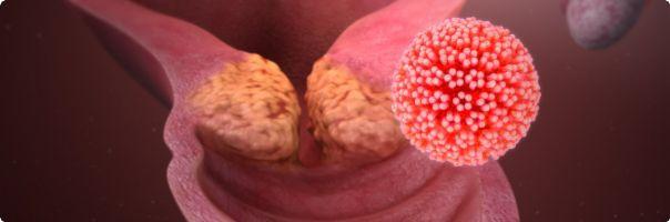 Vymýcení rakoviny děložního čípku se stává realitou