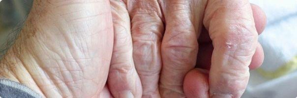 Analýza pádů u seniorů v lůžkových zařízeních
