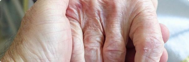 Vliv komplikací ICHDK  na kvalitu života seniora
