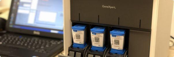 Ve FN Ostrava vyhodnotí díky novému přístroji přítomnost koronaviru do 45 minut
