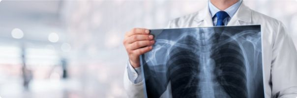 Pacientům s idiopatickou plicní fibrózou už nikdo léčbu nevysadí